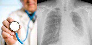 WHAT IS MESOTHELIOMA AND WHO MIGHT BE AT RISK?